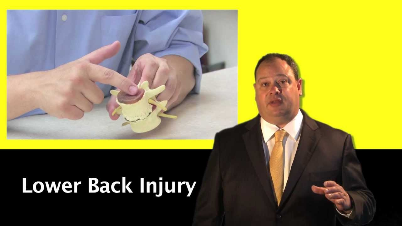 Lawyers Specializing in Personal Injury Munnsville NY