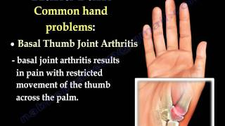 Hand Pain ,Fingers pain - Everything You Need To Know - Dr. Nabil Ebraheim