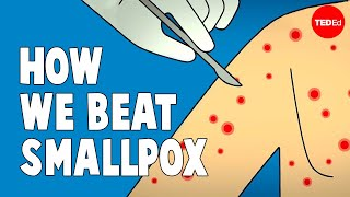 How we conquered the deadly smallpox virus - Simona Zompi width=