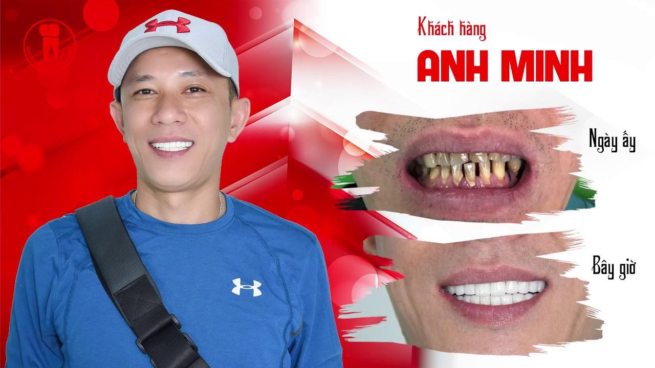 khách hàng review sau khi bọc răng sứ tại Nha khoa Đại Nam