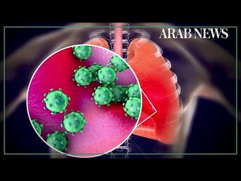 Coronavirus could kill 81,000 in US, says study