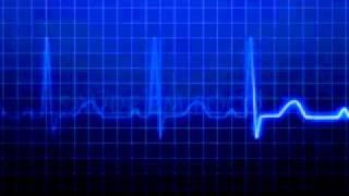 Efeito cardiograma