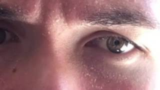 "Quadible Integrity silver eye results ""almost 2 months now"""