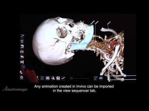 How to Open Invivo Files in Anatomage Table 5.0