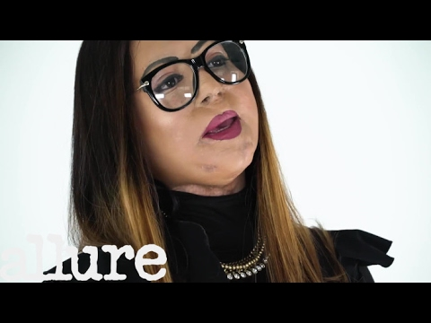 One Acid Attack Survivor on How She Learned to Accept Her ?Stolen? Face | Allure