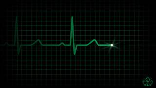 Best ANALOG ECG Animation   HD