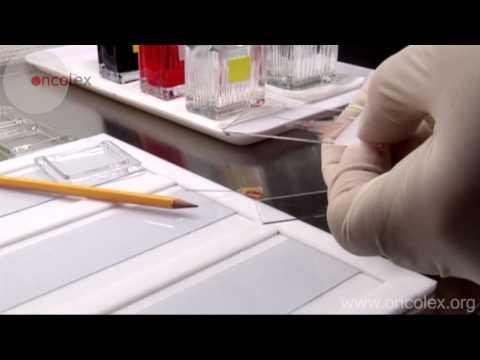 Fine needle biopsy non-aspiration technique • Oncolex