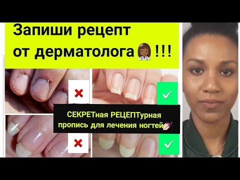 Как отрастить длинные ногти быстро//Если слоятся ногти//Ломкость ногтей и заусенцы photo