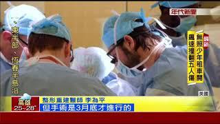 全球首例! 美台裔醫成功移植男生殖器