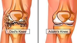 How Osteoarthritis Develops Animation - Causes & Symptoms of Osteoarthritis - Knee Pain Video