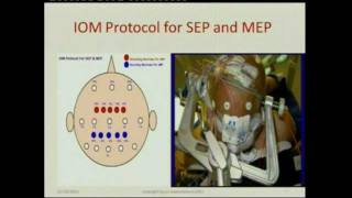 Dr Mohammed Kabiraj Neuro Monitoring during spine surgery - YouTube